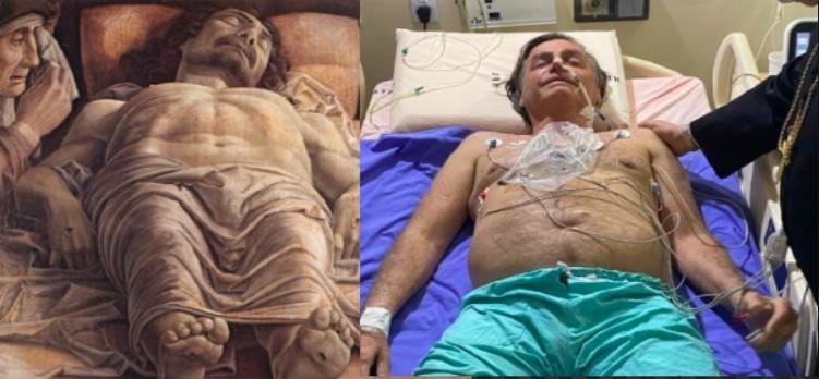 Bolsonaro no hospital e o quadro 'Lamentação sobre o Cristo Morto', de Andrea Mantegna