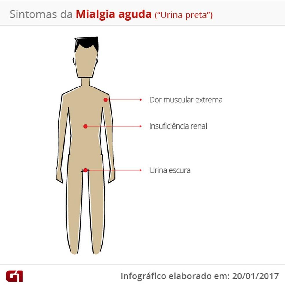 São três os principais sintomas da mialgia aguda (Foto: Infográfico G1)
