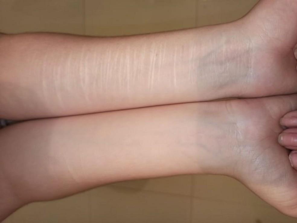 Lara mostra lesões que fez em si. Ela afirma que foi uma forma de aliviar a dor que sentiu após vídeo viralizar — Foto: Arquivo pessoal