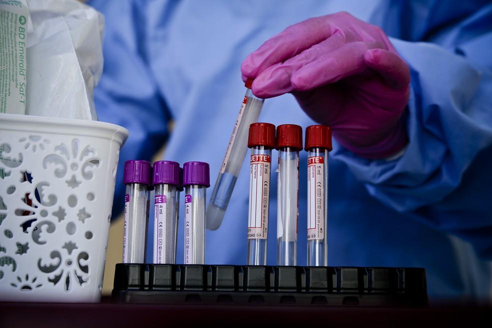 Material de realização de teste RT-PCR, que detecta o novo coronavírus — Foto: Breno Esaki/Agência Saúde