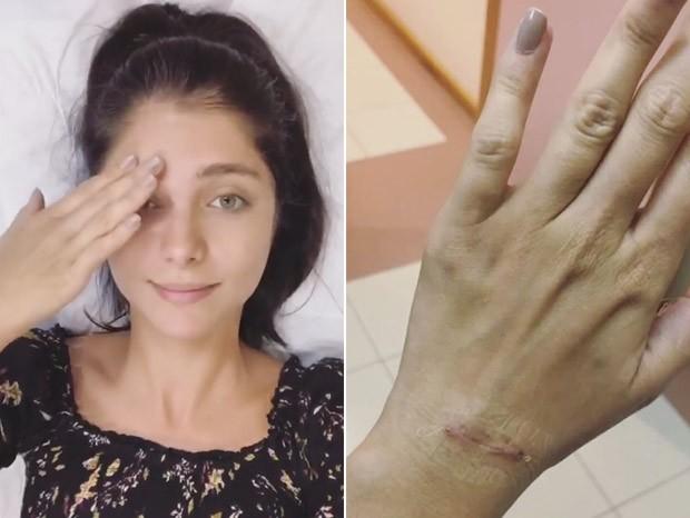 Tammy di Calafiori mostra sua mão pós-cirurgia (Foto: Reprodução/Instagram)