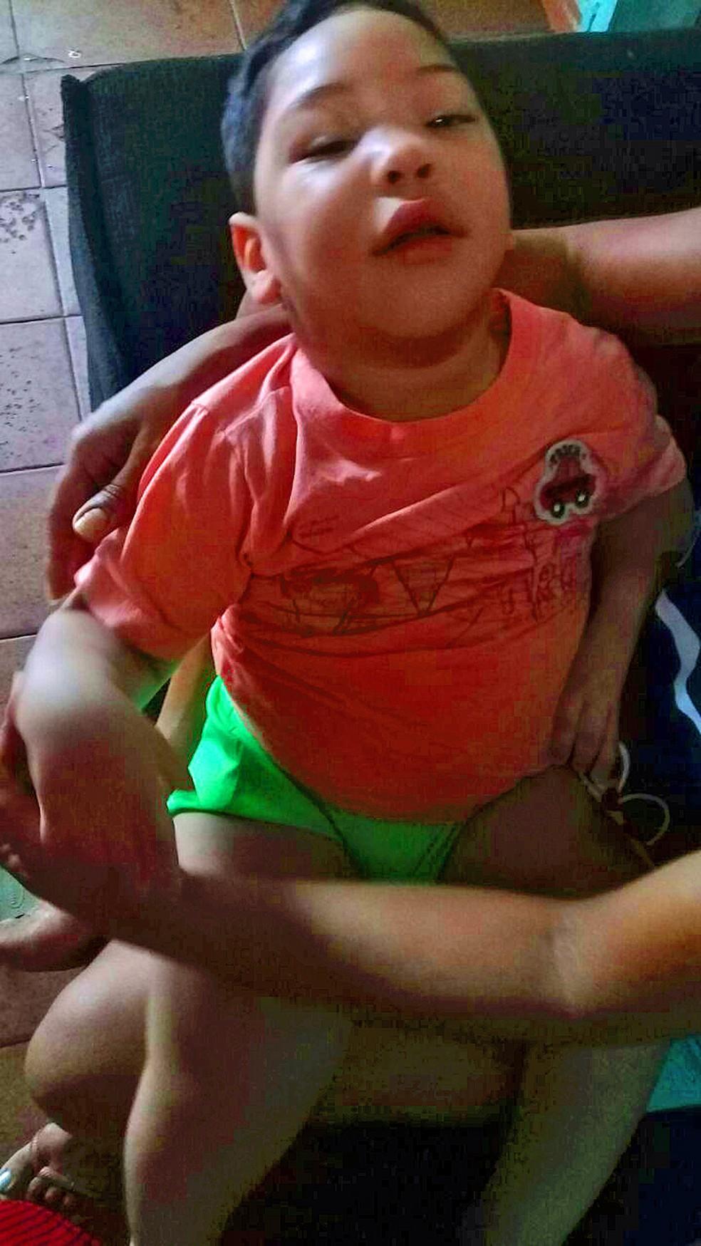 João Arthur, de Recife, que está há um ano sem tratamento (Foto: Arquivo Pessoal)