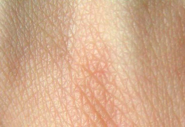 Pele humana (Foto: Wikimedia Commons)