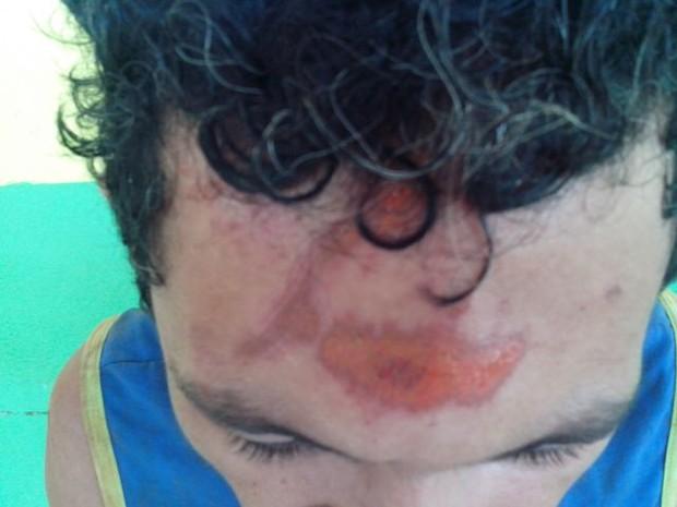 Suposto criminoso teve vários ferimentos no rosto (Foto: Guerard Castro/ Portal Guajará)