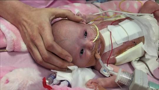 Prematura nasce com coração fora do corpo, é operada e sobrevive
