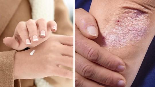 3 tipos de alergias que você pode ter durante o frio do inverno: entenda os sintomas e saiba como prevenir