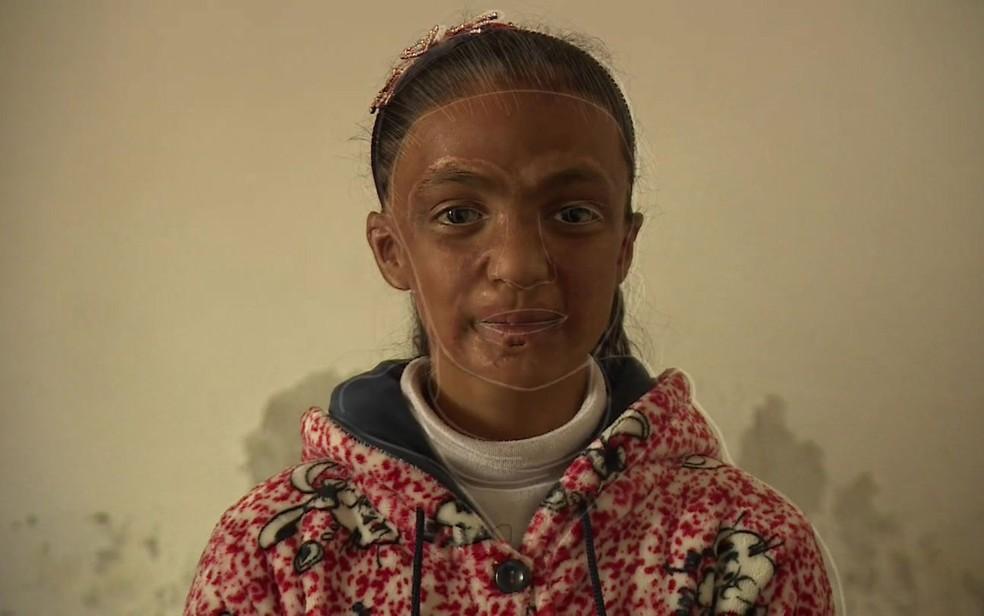 -  O drama de irmãs que tiveram rostos queimados na guerra da Síria  Foto: Reprodução/BBC