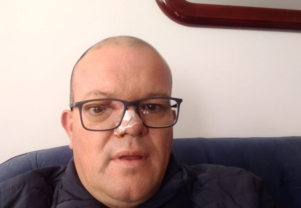 Cláudio Adriano Bittencourt depois de passar pela cirurgia para a retirada do tumor cerebral  (Foto: Arquivo pessoal )