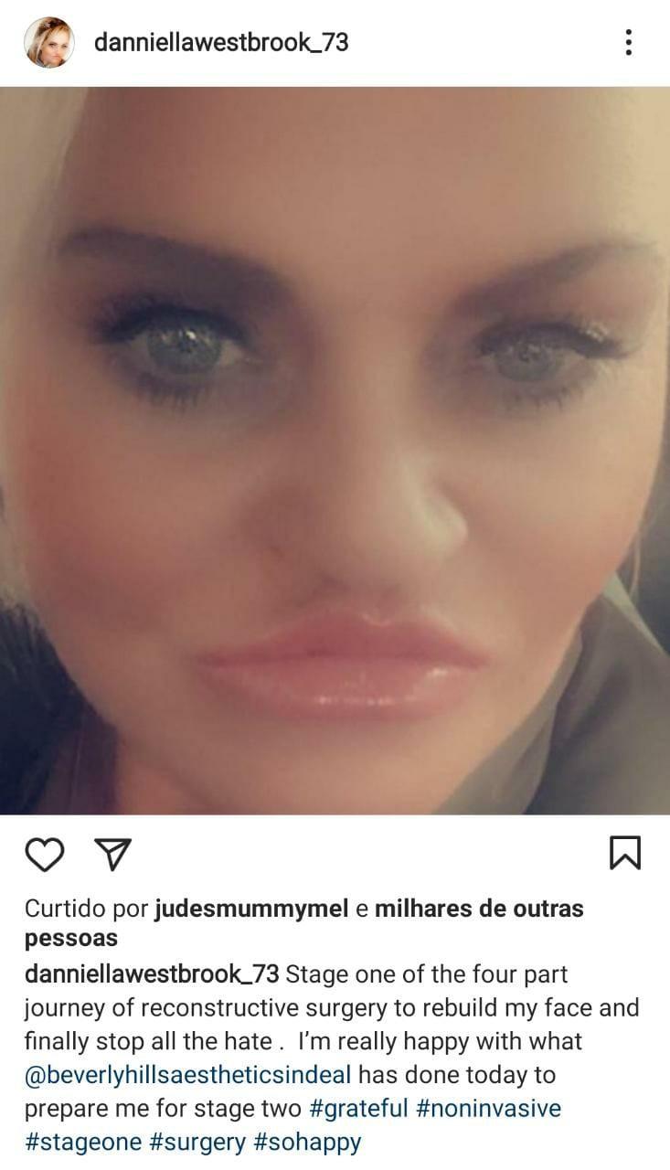 Danniella Westbrook comemora primeira de quatro cirurgias que fará para reconstrução de seu rosto (Foto: Reprodução/Instagram)