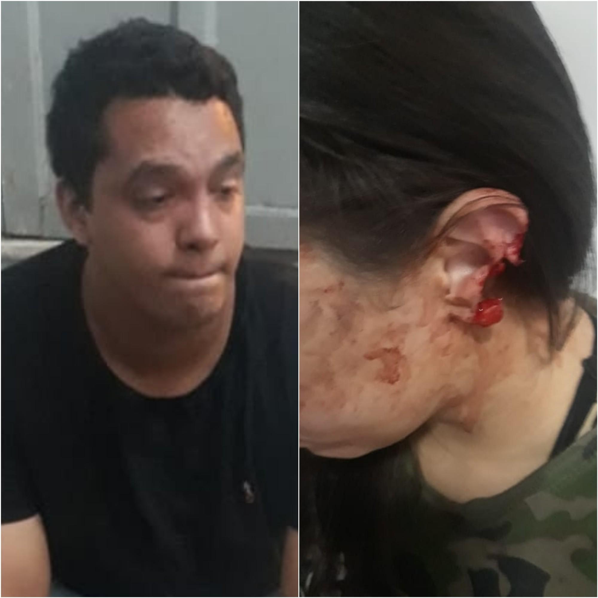 Homem é preso após morder e arrancar parte da orelha da esposa em Imperatriz, no Maranhão