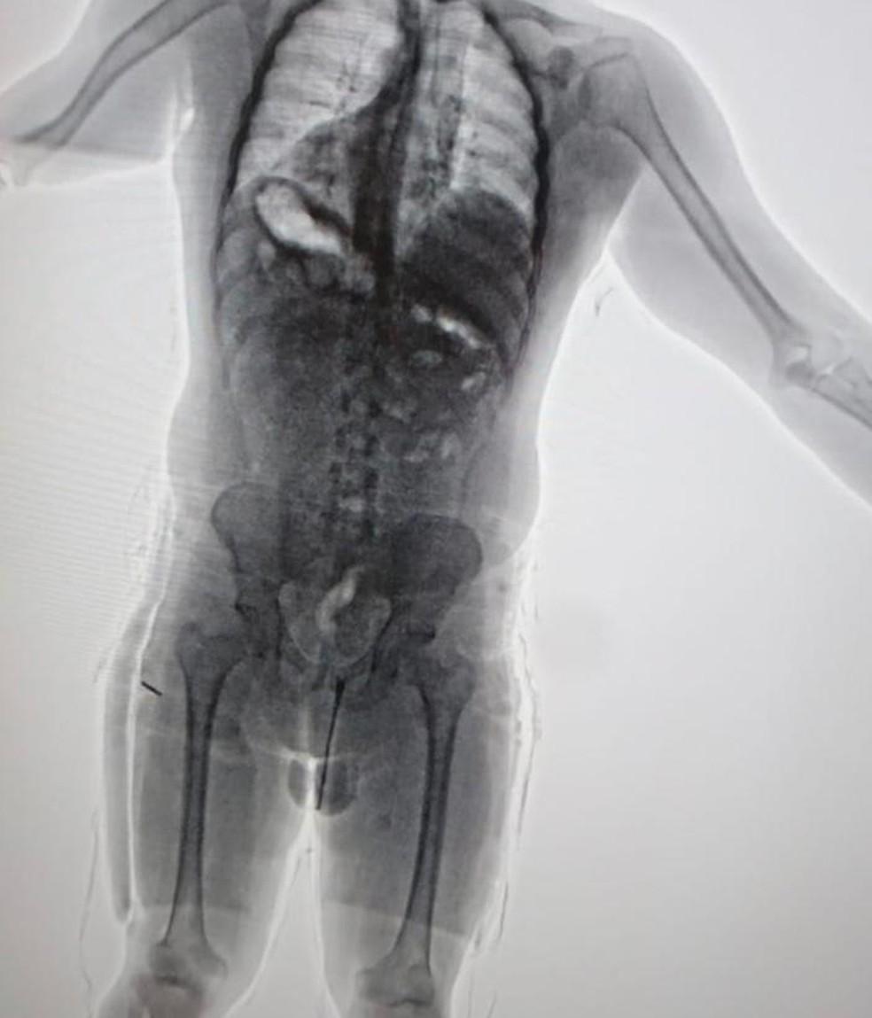 Droga foi identificada quando o paraguaio passou pelo raio-x do aeroporto  — Foto: Divulgação/PF