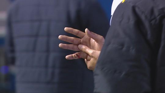 Após dividida, meia do Criciúma sofre luxação com exposição óssea no dedo