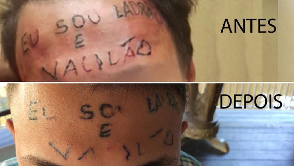 Tatuado com 'ladrão e vacilão' na testa é preso por furtar desodorantes em SP - image antes on https://antv.news