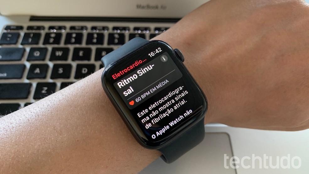 Apple Watch já identifica doenças como diabetes e fibrilação atrial — Foto: Helito Beggiora/TechTudo