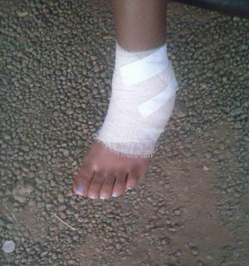 Jovem foi ferroada quando estava em área de proteção da praia do Prata  (Foto: Arquivo Pessoal)