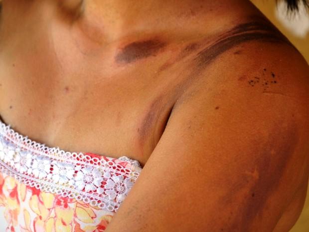 Kelissa diz ter pensado que trote seria com tinta (Foto: Eliete Marques/ G1)