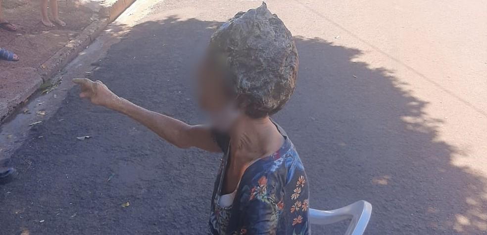 Vítima ficou com os cabelos colados em Rio Preto  — Foto: Arquivo Pessoal