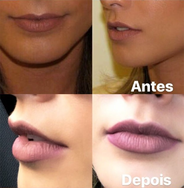 Babi Rossi mostra o antes e depois de fazer um preenchimento labial (Foto: Reprodução/Instagram)