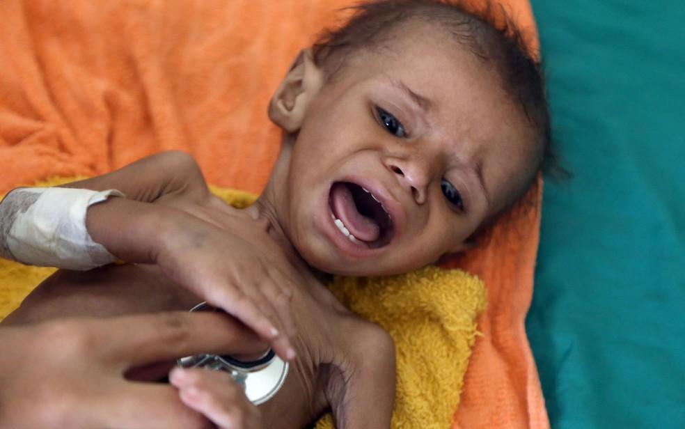A desnutrição na infância pode comprometer o desenvolvimento cognitivo da criança e implicar em problemas de saúde ao longo da vida — Foto: Ahmad Al-Basha/AFP