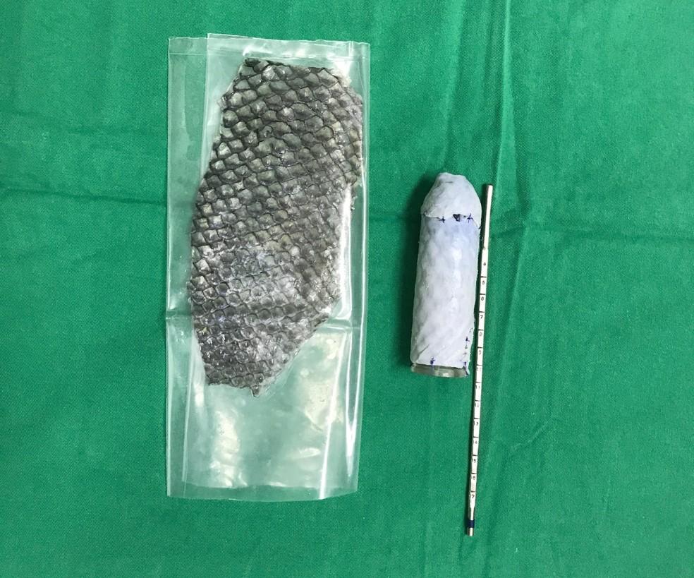 Pele em embalagem estéril e, à direita, montada em molde vaginal (Foto: Leonardo Bezerra/Arquivo pessoal)