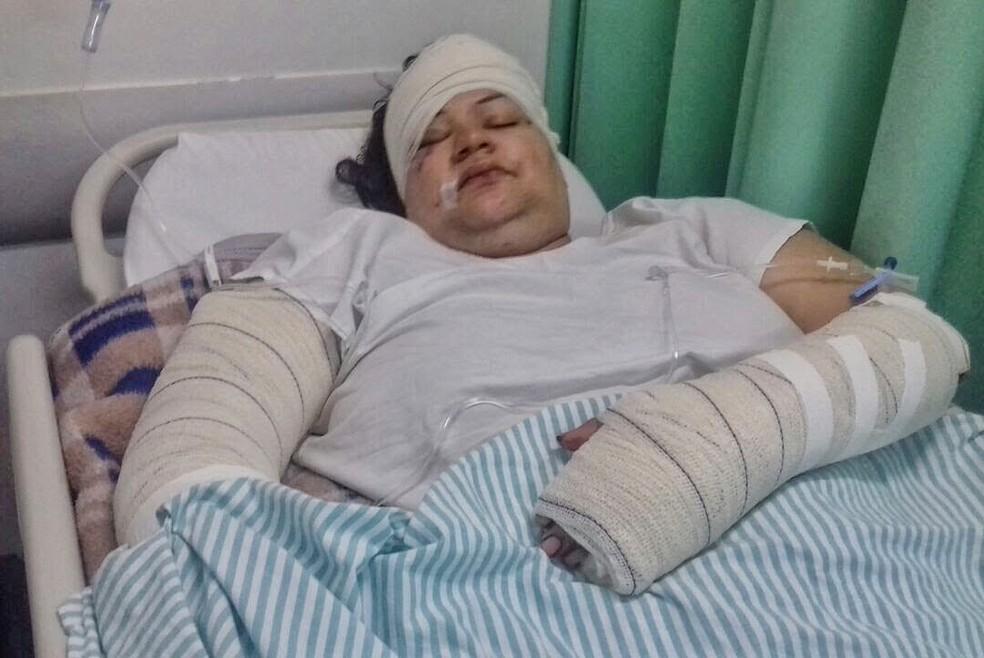Bruna ficou 4 dias internada no hospital para cuidar dos ferimentos (Foto: Arquivo pessoal )