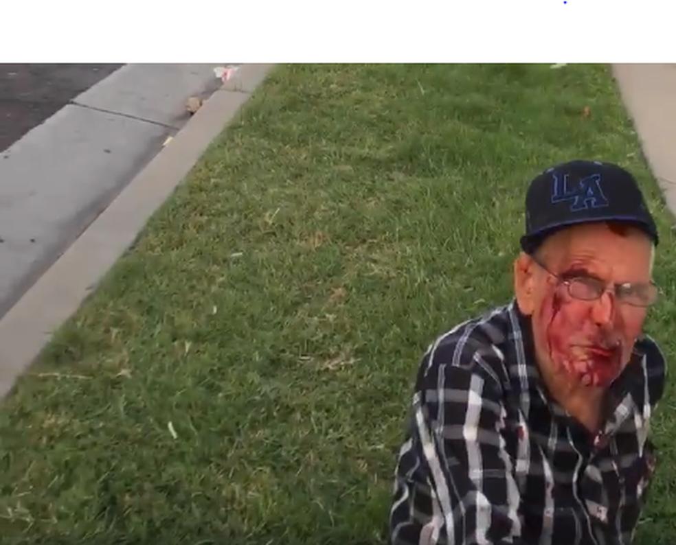 Rodolfo Rodriguez, 92 anos, momentos após ser espancado perto de Los Angeles (Foto: Arquivo pessoal/Misbel Borjas)