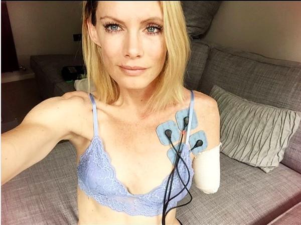 A dublê Olivia Jackson em uma sessão de fisioterapia (Foto: Instagram)