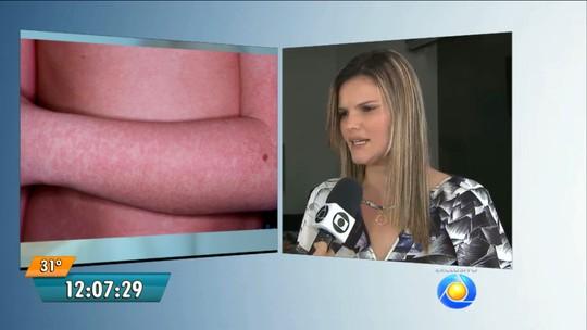 Surto de doença com manchas vermelhas na pele é confirmado na PB