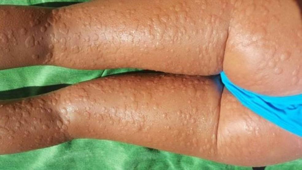 Para evitar os sintomas, Beatriz Sánchez toma quatro comprimidos de anti-histamínicos diariamente  (Foto: Beatriz Sánchez)