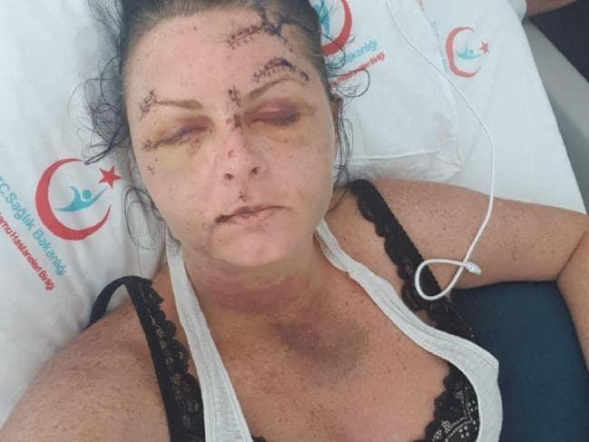 Emma Higginson sofreu ataque na Turquia  (Foto: The Sun/ Reprodução)