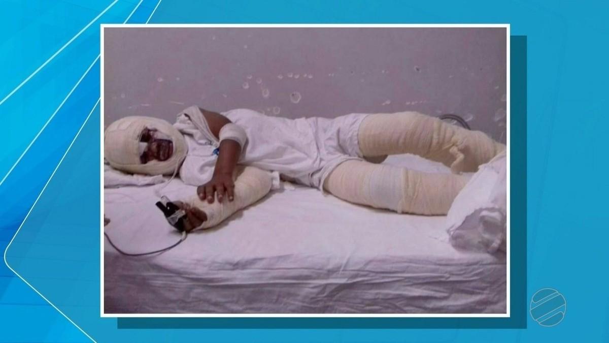 Criança internada com queimaduras passa por procedimento e é transferida para centro de tratamento em Cuiabá