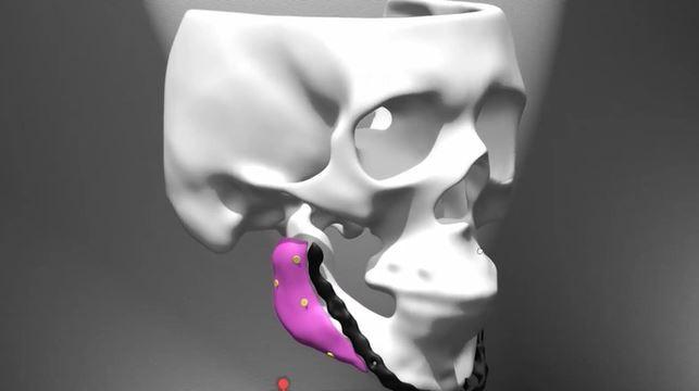 Empresa de SC trabalha com imagem e tecnologia para desenvolver próteses personalizadas