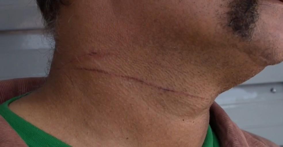 Motociclista foi ferido por linha de pipa, em Presidente Prudente — Foto: Reprodução/TV Fronteira