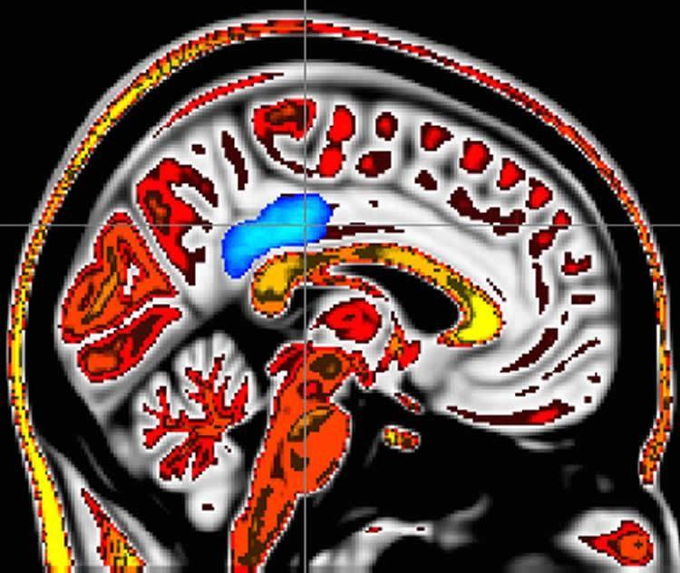 Ressonância apontou que área do cérebro ligada à mente plena também está conectada com menos dores (Foto: Wake Forest Baptist Medical Center)