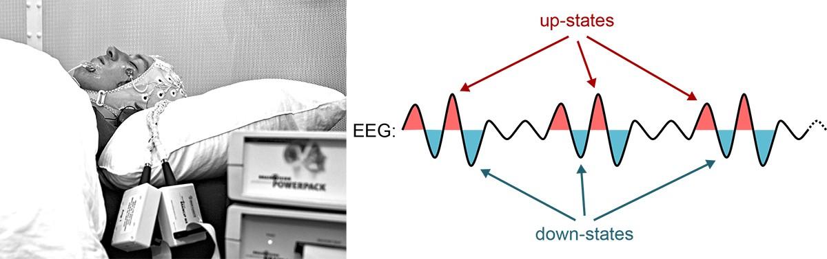 Usando como base os padrões ativos das células cerebrais, os cientistas provaram que o cérebro consegue assimilar informações novas mesmo em estado inconsciente (Foto: Simon Ruch / Marc Züst (Universidade de Berna))