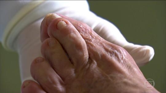 Toalha, tapete, sapato, meias e itens de manicure podem transmitir micose