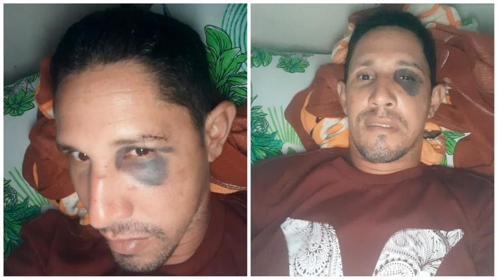 Socorrista condutor está internado no Hospital Municipal em Santarém — Foto: Arquivo pessoal