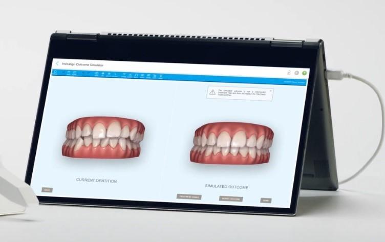 O software ClinCheck ® planeja o tratamento completo com estimativa de tempo e mostra o sorriso antes e depois do Invisalign ® (Foto: Divulgação)