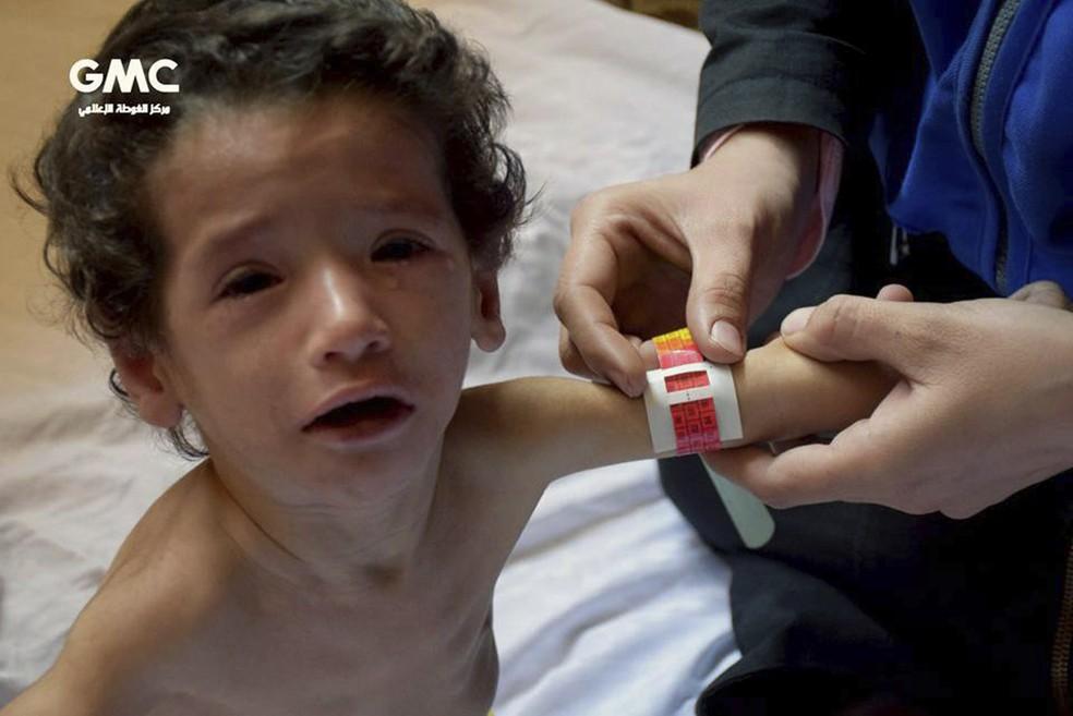 Criança de Guta recebe atendimento médico no dia 12 de novembro (Foto: Ghouta Media Center via AP)