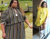 """Gamer trans fará plásticas depois de emagrecer 54kg: """"Precisava mudar ou continuaria caminhando para a morte"""""""