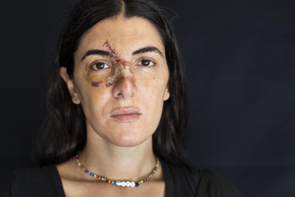 Angelique Sabounjian, atingida em seu escritório durante a explosão do dia 4 de agosto, em Beirute, Líbano — Foto: Hassan Ammar/AP