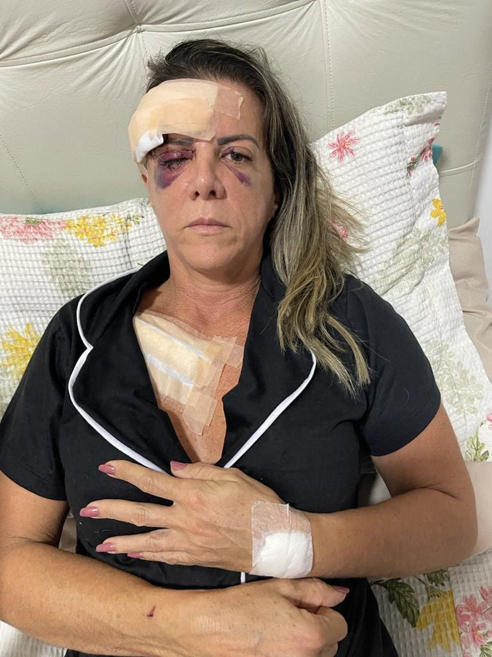 Kátia Rodrigues, de 49 anos, foi atacada por um cachorro da raça pitbull, enquanto caminhava na orla de Petrolina — Foto: Arquivo da família