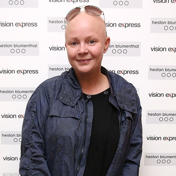 Gail Porter (Foto: Getty Images)