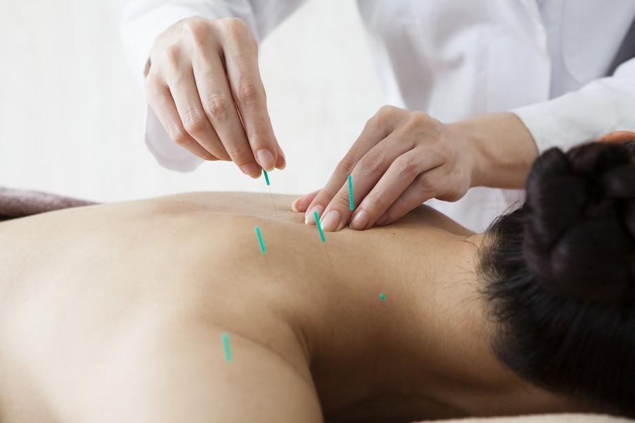 Menos dor, melhor rendimento: acupuntura conquista atletas