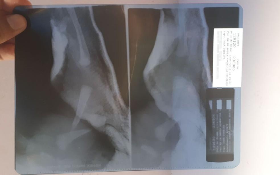 Raio-x mostra fratura em perna de bebê nascido no sul da Bahia (Foto: Giro em Ipiaú)