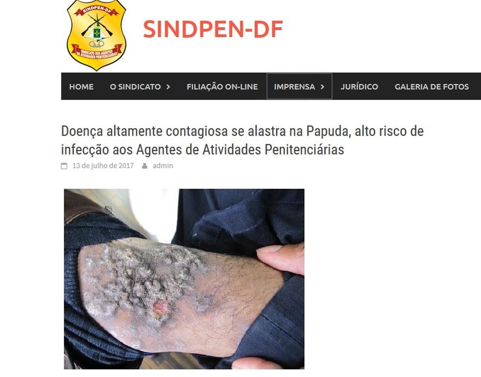 Foto do portal do Sindpen mostra doença de pele provocada por bactérias atingiu, ao menos, 600 detentos da Papuda, em Brasília (Foto: Sindicato dos Agentes Penitenciários/Reprodução)