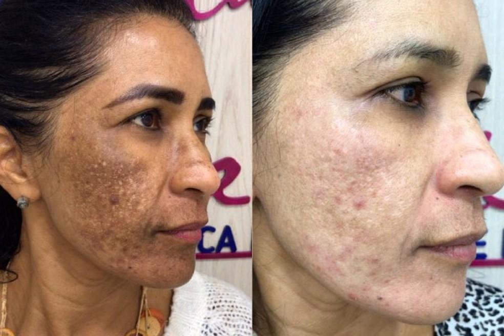 Antes e depois de Elzirene Oliveira: método garante resultado imediato — Foto: Cimara La Belle/Divulgação