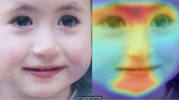 Nossas características faciais podem dar informações sutis sobre certas doenças genéticas raras, as quais computadores estão ajudando médicos a identificar (Foto: FACE2GENE/FDNA via BBC News Brasil)