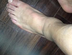 Lucas exibe pé machucado (Foto: Divulgação / Assessoria de Imprensa)