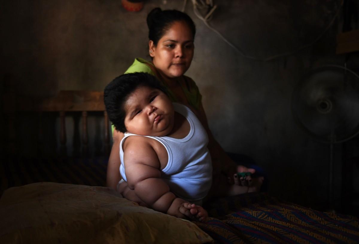 O que é a inflamação rara que fez bebê mexicano chegar aos 28 kg com dez meses de idade